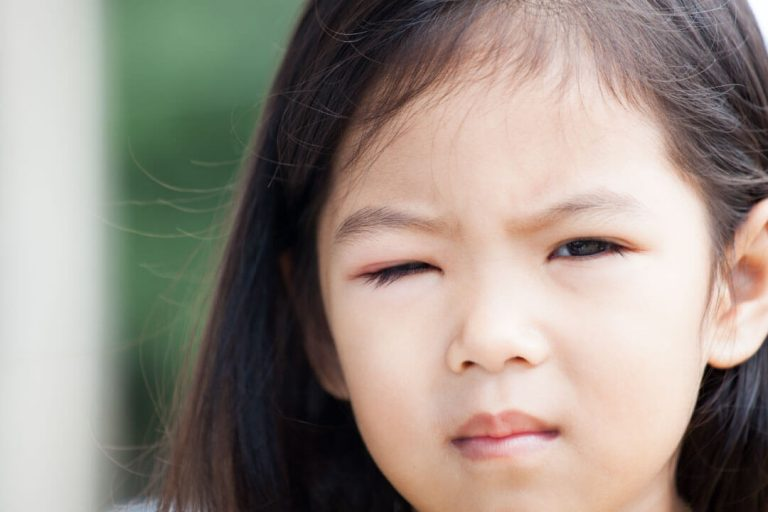 look out for eye problems in children
