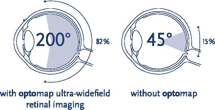 Optos Ultrawide Imaging